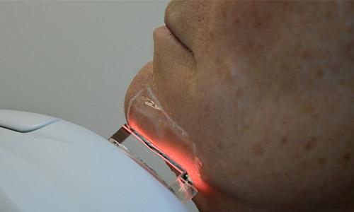Laserbehandeling gezicht web